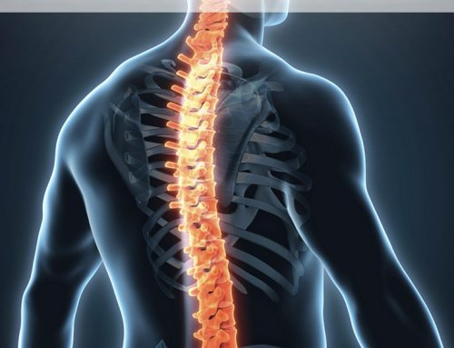 Case Study Reveals Sciatica Relief May Start in the Neck