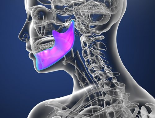 The Causes of Temporomandibular Joint Disorder (TMJD)