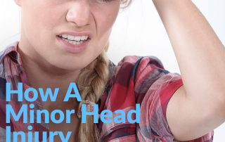 Minor Head Injury Can Lead To Vertigo (IMG)