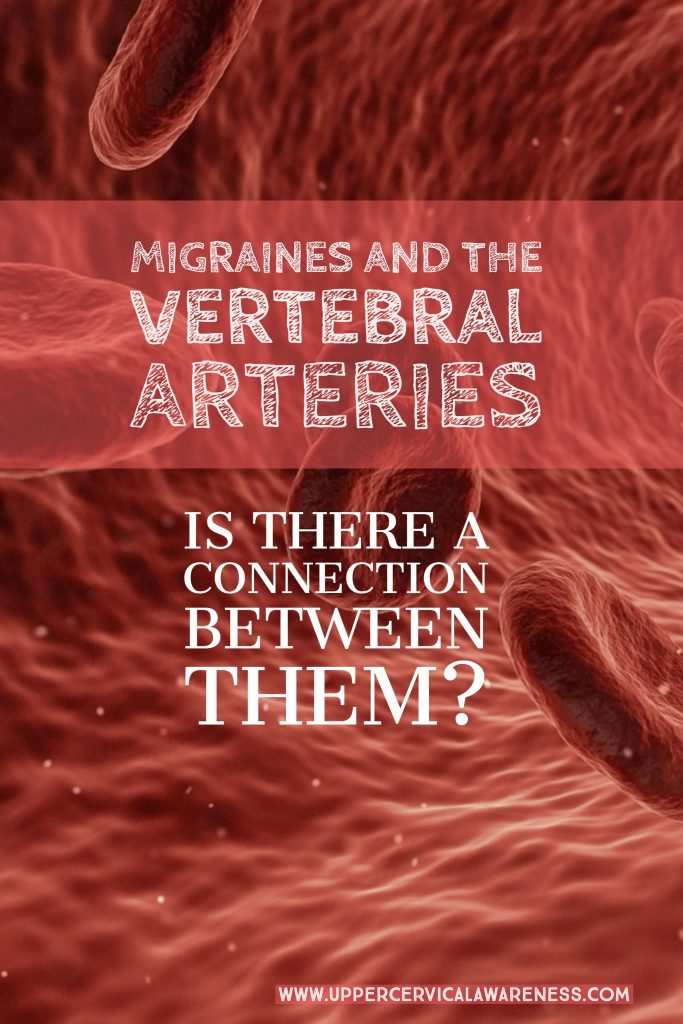 Link between Vertberal Artery and Migraine