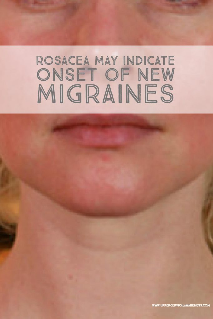 How rosacea may cause new migraines