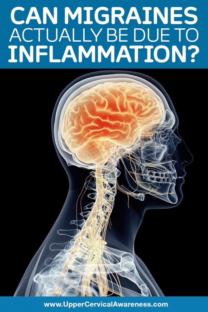 Can inflammation cause migraine?