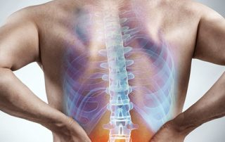 10 FAQs about Sciatica