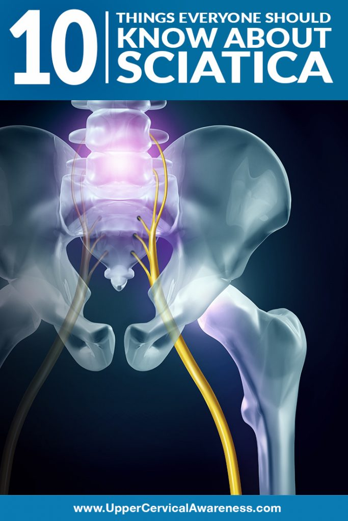 10 Facts about Sciatica