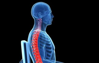How upper cervical care promotes good posture
