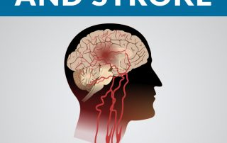 explaining-the-similar-symptoms-between-migraines-and-stroke