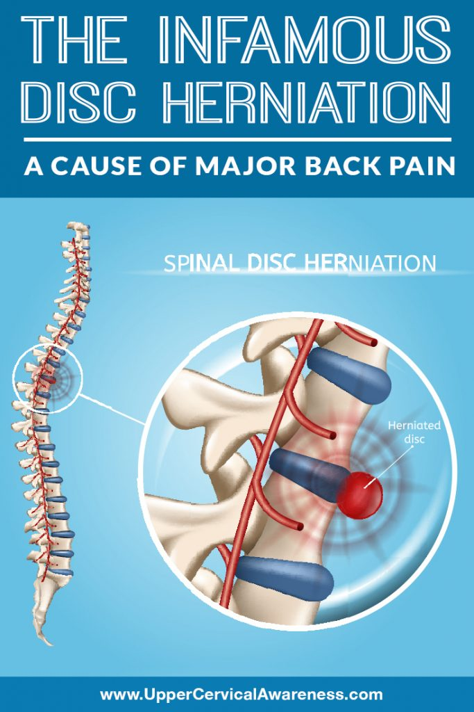 the-infamous-disc-herniation-a-cause-of-major-back-pain
