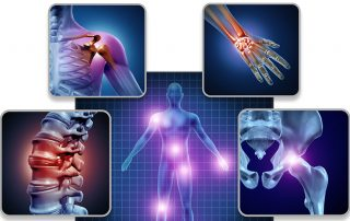 Fibromyalgia And Lupus Similarities And Differences (IMG)