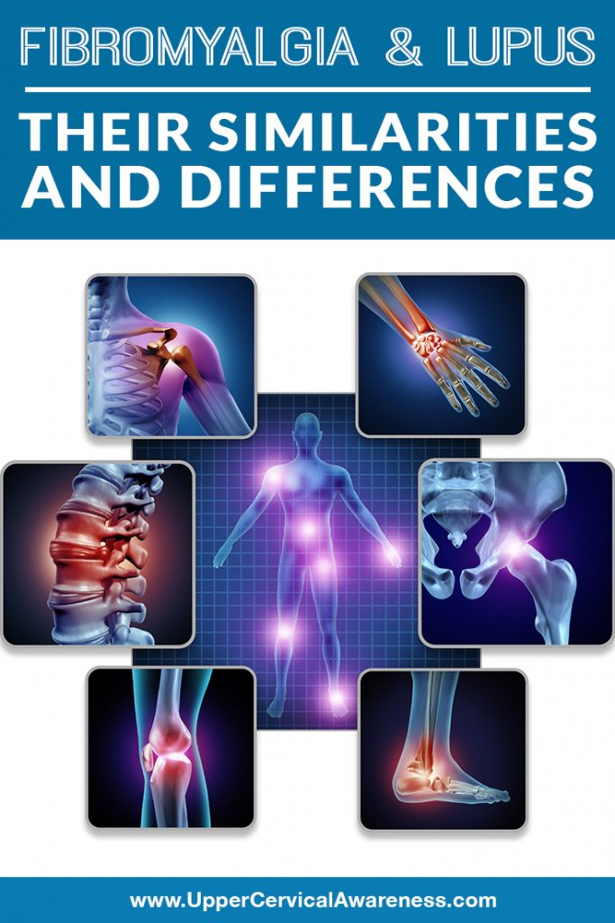 fibromyalgia-and-lupus-their-similarities-and-differences