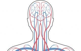 menieres-disease-why-brain-blood-flow-matters