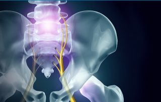 relieving-sciatica-what-are-your-care-options