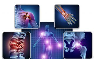do-you-have-fibromyalgia-or-psoriatic-arthritis