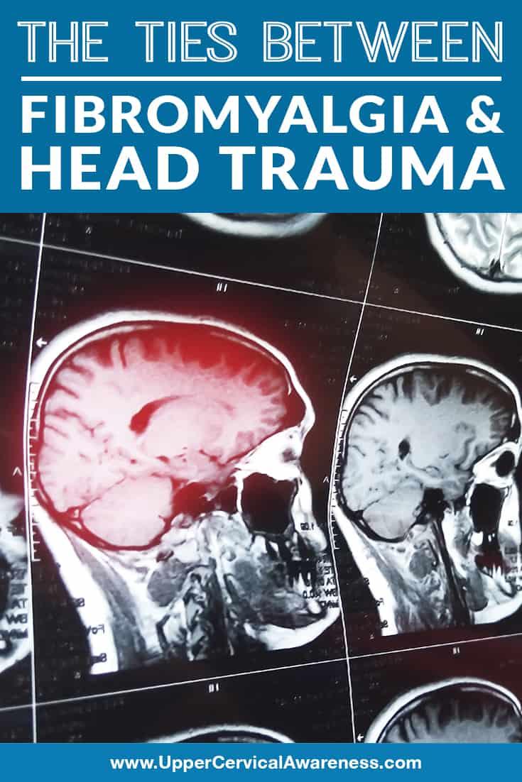 the-ties-between-fibromyalgia-and-head-trauma