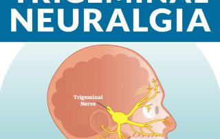 trigeminal neuralgia, upper cervical chiropractic