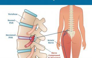 sciatica, upper cervical chiropractor